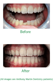 cosmetic Dentistry make over