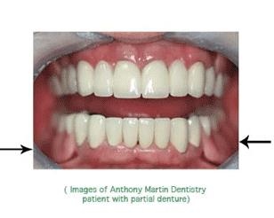Dental dentures VA