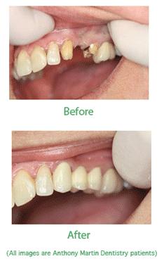 Bidge work dental