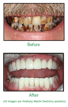 Smile Makeover before and after
