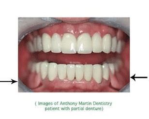 Dental dentures VA