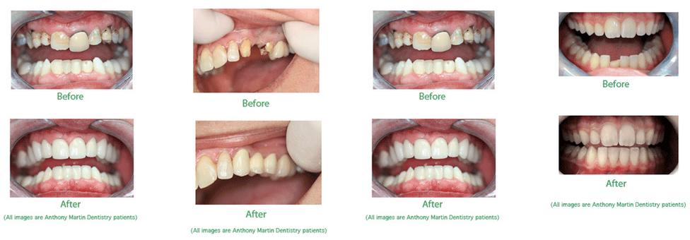 cosmetic dentistry yorktown va
